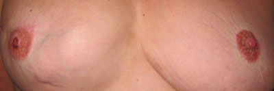 IMG_0926-breasts-2nd-app