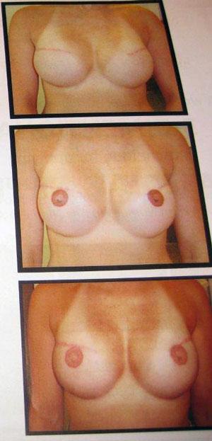 IMG_0983-areola-nipple-stages