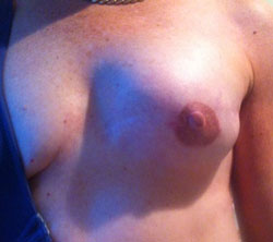areola-complex-3-months-after