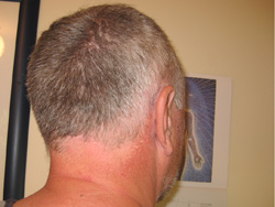 head-scar-last