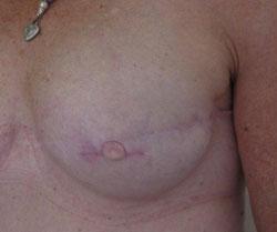 nipple-areola-tattoo-nipple-in-place